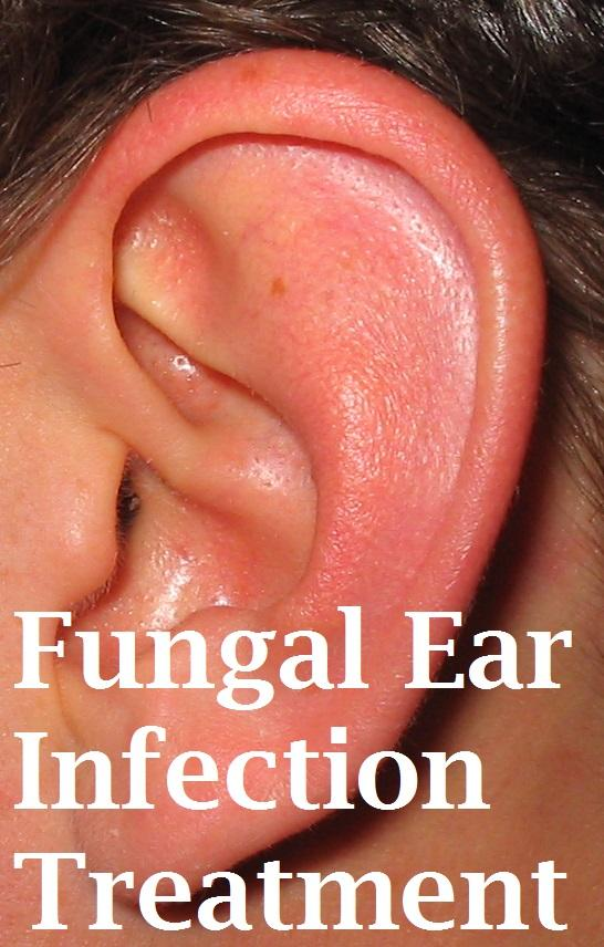 Fungal Ear Infection Treatment